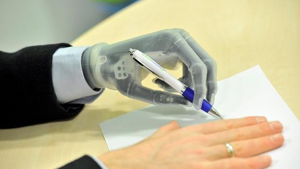 پيشرفته ترين دست مصنوعي جهان  I-limb ultra revolution