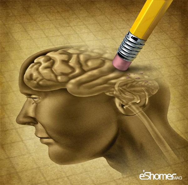 مجله خبری ایشومر Alzheimer-mag-eshomer مبارزه با بیماری آلزایمر با روش درمانی جدید سبک زندگي سلامت و پزشکی  مجله مبارزه فرکانس روش درمانی خبری جدید بیماری ایشومر آلزایمر LED