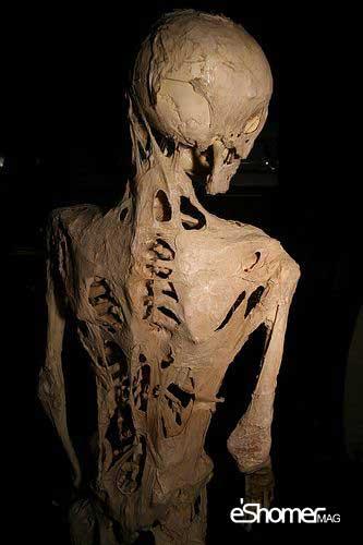 مجله خبری ایشومر Fibrodysplasia_ossificans_progressiva-mag-eshomer سندرم مرد سنگی بیماری نادری که انسان را به استخوان تبدیل میکند سبک زندگي سلامت و پزشکی  نادر مرد فیبرودیسپلازی شونده سنگی سندرم بیماری استخوانی استخوان progressiva ossificans FOP Fibrodysplasia
