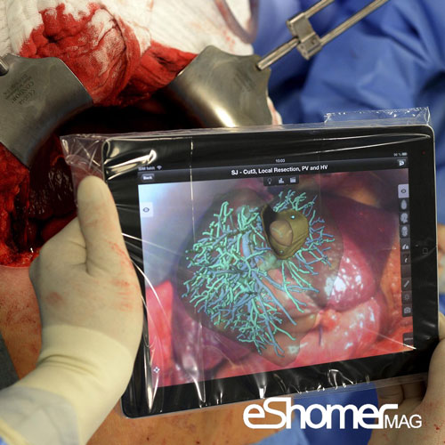 ورود آی پد I PAD  به اتاق عمل در عمل جراحی کبد