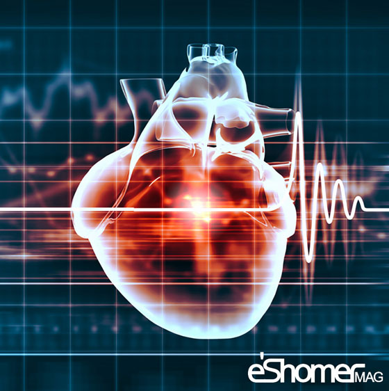 مجله خبری ایشومر Risk-factors-for-coronary-artery-disease-mag-eshomer عوامل خطر ساز در بیماریهای عروق کرونر قلبی سبک زندگي سلامت و پزشکی  قلبی عروق کرونر سلامت و پزشکی سلامت دیابت درمان بیماری های قلبی خطر