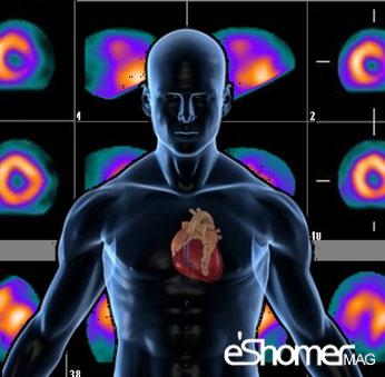مجله خبری ایشومر Scanning-the-heart-of-why-and-how-it-is-done-mag-eshomer اسکن قلب چرا و چگونه انجام می شود سبک زندگي سلامت و پزشکی  قلب عروق سلامت و پزشکی سلامت سکته درمان بیماری های قلبی بیماری اسکن