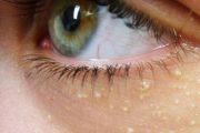 دانه های سفید پوستی Milia اطراف چشم و درمان سریع آن