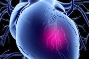 روش درمان اختلالات عروق کرونر قلب در بیمارستان چیست