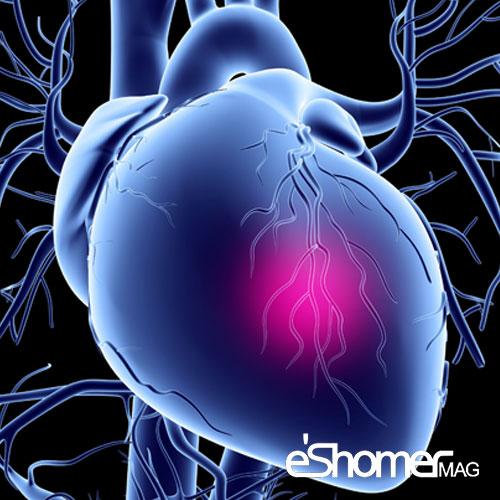 مجله خبری ایشومر روش-درمان-اختلالات-عروق-کرونر-قلب-در-بیمارستان-چیست-مجله-خبری-ایشومر روش درمان اختلالات عروق کرونر قلب در بیمارستان چیست سبک زندگي سلامت و پزشکی  کرونر قلب عروق کرونر عروق سلامت و پزشکی سلامت درمان بیماری های قلبی درمان پزشکی