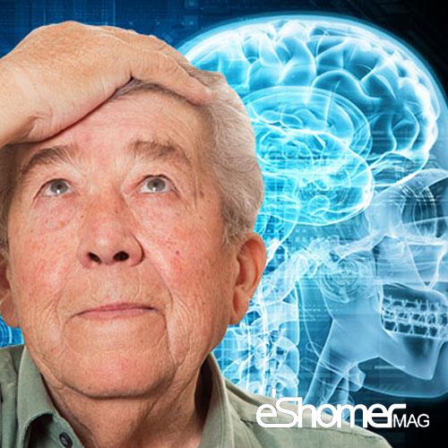مجله خبری ایشومر نشانه-و-علائم-پیری-از-چین-خوردگی-های-مغز نشانه و علائم پیری از چین خوردگی های مغز سبک زندگي سلامت و پزشکی  نشانه مغز علائم خوردگی چین پیری