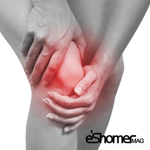 5 راهکار برای پیشگیری از زانو درد و تقویت زانو