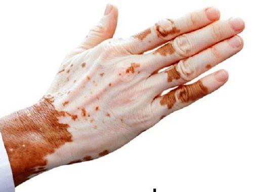 آشنایی با بیماری پوستی لک و پیس Vitiligo و علائم آن