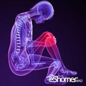 مجله خبری ایشومر با-علائم-پارگی-رباط-صلیبی-زانو-آشنا-شویم-مجله-خبری-ایشومر-300x300 با علائم پارگی رباط صلیبی زانو آشنا شویم سبک زندگي سلامت و پزشکی  سلامت زانو پزشکی medical Knee Health