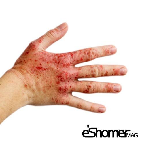 مجله خبری ایشومر بیماری-اگزما-Eczema-یا-درماتیت-دست-در-زنان-خانه-دار-،-پیشگیری-و-درمان-آن-مجله-خبری-ایشومر بیماری اگزما Eczema  یا درماتیت دست پیشگیری و درمان آن سبک زندگي سلامت و پزشکی  سلامت دست درمان پیشگیری پوست پزشکی بیماری اگزما