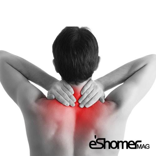  علائم کشیدگی گردن Neck Sprain و راه حل های درمان آن