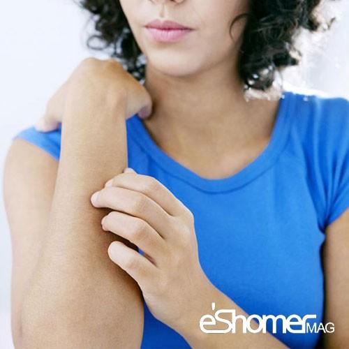 مجله خبری ایشومر خارش-پوست-خارش-پیری-خارش-حاملگی-مجله-خبری-ایشومر بیماری خارش پوست خارش پیری خارش حاملگی سبک زندگي سلامت و پزشکی  سلامت و پزشکی خارش پوست پوست بیماری های پوست