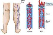 بیماری گرفتگی عروق پا DVT علل و روش های درمان