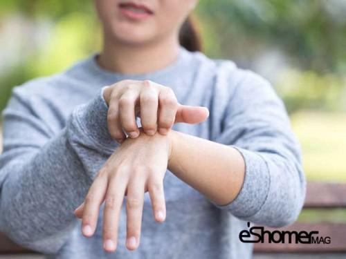 روش های جلوگیری از بروز بیماری پوستی در افراد دیابتی