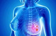 سرطان سینه چیست و مهم ترین علائم سرطان سینه کدامند ؟