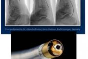 نحوه باز کردن رگ های بسته شده  با  Phoenix Atherectomy System