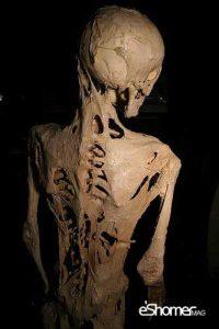 سندرم مرد سنگی بیماری نادری که انسان را به استخوان تبدیل میکند
