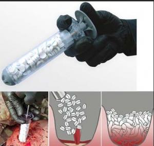برای بند آوردن خونریزی های ناشی از زخم گلوله یک ابزار جدید اختراع شد
