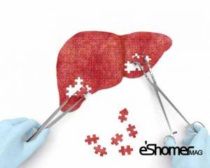 مجله خبری ایشومر 1-fatty-liver-mag-eshomer-300x240 راهکار ساده برای درمان کبد چرب بدون دارو سبک زندگي سلامت و پزشکی  کبد ساده راهکار درمان دارو چرب برای بدون