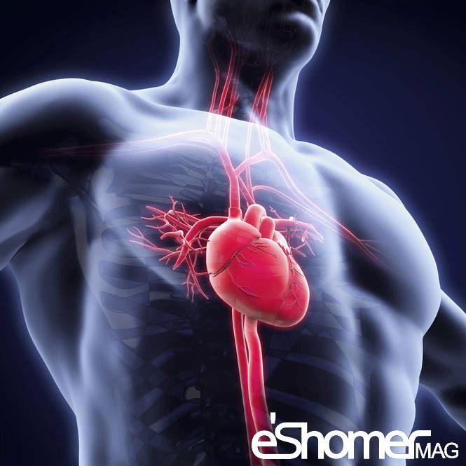 مجله خبری ایشومر Coronary-Artery-Disease-1-mag-eshomer بیماری عروق کرونر و علائم بیماران مبتلا به آن سبک زندگي سلامت و پزشکی مبتلا کرونر علائم عروق صدری رگ خون بیماری بیماران آنژین