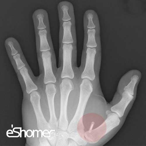 مجله خبری ایشومر chip_froeschle_mag-eshomer نسل جدید تراشه های شناسایی هویت با کاشت در بدن فرد تكنولوژي نوآوری هویت نسل کاشت فرد شناسایی جدید تراشه بدن