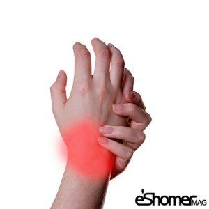 ورزش هایی برای پیشگیری و درمان درد مچ دست