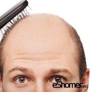 علت ریزش موهای سر و درمان آن به روش خانگی 3