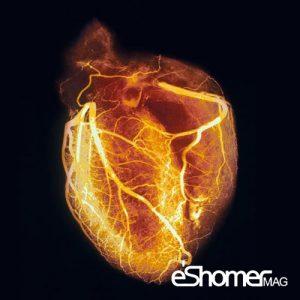 آنژیوگرافی روش تشخیصی برای بررسی عروق قلب