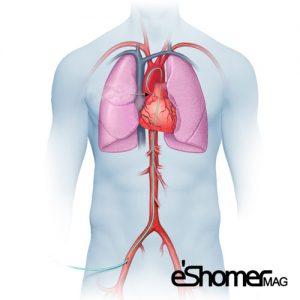 آنژیوگرافی قلب چگونه انجام می شود