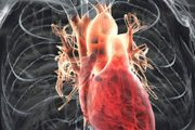 بعد از انجام آنژیوگرافی قلب چه اتفاقی می افتد