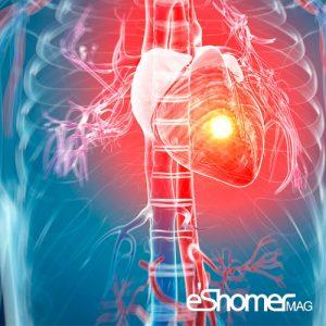 بیشترین زمان حملات قلبی در چه ساعات شبانه روزی رخ می دهد