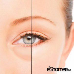 مجله خبری ایشومر راهکار-ساده-خانگی-برای-کاهش-دادن-پف-زیر-چشم-مجله-خبری-ایشومر-300x300 راهکار ساده خانگی برای کاهش دادن پف زیر چشم سبک زندگي سلامت و پزشکی  سلامت درمانی درمان خواص درمانی چشم پوست پزشکی