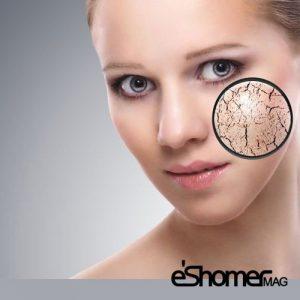 رفع خشکی پوست و نرم کردن آن با راهکارهای خانگی