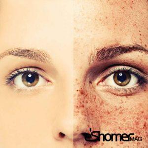 علت به وجود آمدن انواع کک و مک بر روی پوست و درمان آن