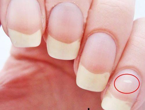 علت به وجود آمدن لکه های سفید بر روی ناخن