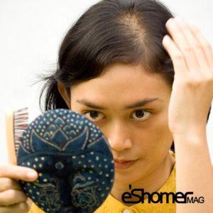 مجله خبری ایشومر موهای-زائد-و-پرمویی-Hirsutism-در-خانم-ها-و-علت-های-به-وجود-آمدن-آن-مجله-خبری-ایشومر-300x300 موهای زائد و پرمویی Hirsutism در خانم ها و علت های به وجود آمدن آن سبک زندگي سلامت و پزشکی  مو غدد سلامت درمانی درمان خواص درمانی پوست پزشکی