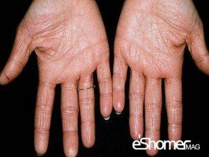 مجله خبری ایشومر بیماری-اگزما-Eczema-یا-درماتیت-دست-پیشگیری-و-درمان-آن-1-مجله-خبری-ایشومر-300x225 بیماری اگزما Eczema  یا درماتیت دست پیشگیری و درمان آن سبک زندگي سلامت و پزشکی  وازلین کرم مرطوب کننده درمان پیشگیری پوست پزشکی بیماری اگزما