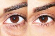 روش های ساده از بین بردن حلقه های تیره دور چشم