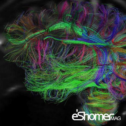 مغز اطلاعات اضافی را به صورت اوتوماتیک پاک میکند