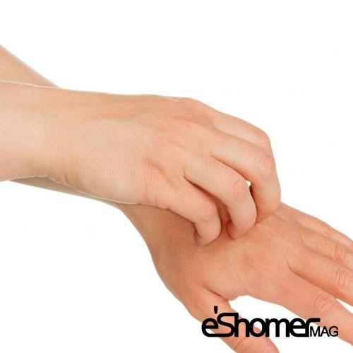 بیماری خارش پوست و راهکارهای درمان آن