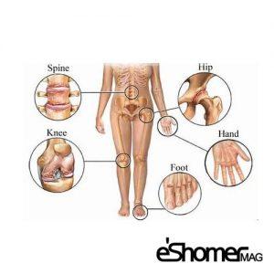 با انواع آرتروز آرتریت و ورم مفاصل آشنا شویم