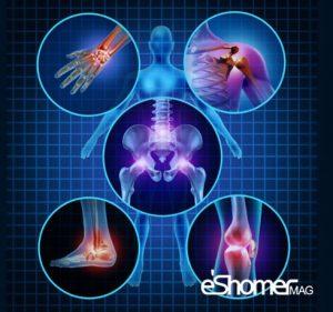 راهکارهای جلوگیری از بروز آرتروز را بشناسیم