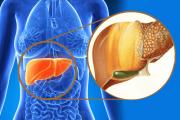 بیماری کبد چرب Fatty liver انواع دلایل ،علام و پیشگیری