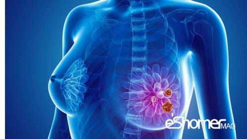 مجله خبری ایشومر رژیم-غذایی-مفید-پیشگیری-سرطان-سینه-مجله-خبری-ایشومر رژیم غذایی مفید در پیشگیری از سرطان سینه کدام است؟ سبک زندگي سلامت و پزشکی سرطان سینه رژیم غذایی پیشگیری از سرطان سینه
