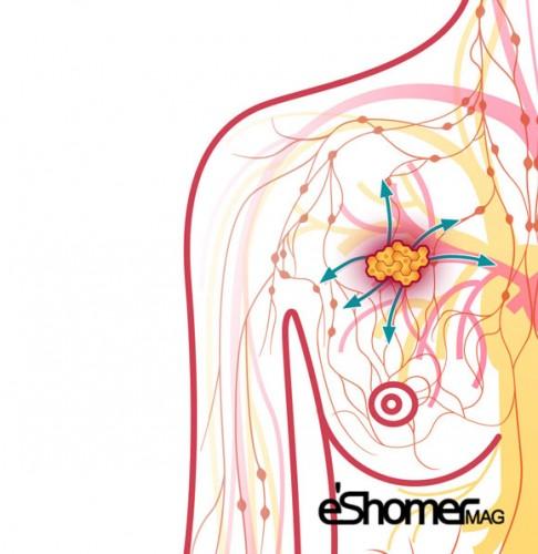 مجله خبری ایشومر پیشگیری-از-سرطان-سینه-رژیم-غذایی-فیبر-مجله-خبری-ایشومر پیشگیری از سرطان سینه با رژیم غذایی با فیبر زیاد سبک زندگي سلامت و پزشکی فیبر سرطان سینه رژیم غذایی با فیبر رژیم غذایی پیشگیری از سرطان سینه