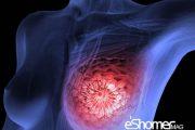 پیشگیری از سرطان سینه با مصرف رژیم غذایی مدیترانه ای