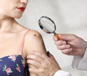 مجله خبری ایشومر با-انواع-مختلف-سرطان-پوست-در-افراد-آشنا-شویم.-مجله-خبری-ایشومر-300x262 با انواع مختلف سرطان پوست در افراد آشنا شویم. سبک زندگي سلامت و پزشکی  سرطان پوست،انواع سرطان پوست،نشانه های سرطان پوست سرطان
