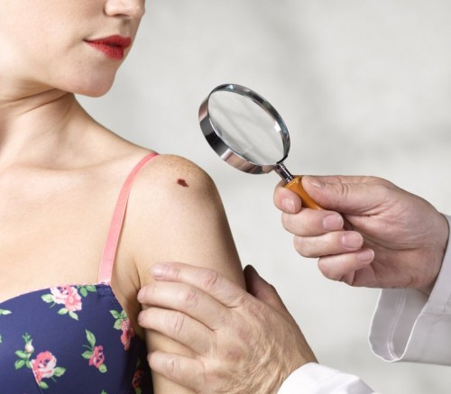 با انواع مختلف سرطان پوست در افراد آشنا شویم.