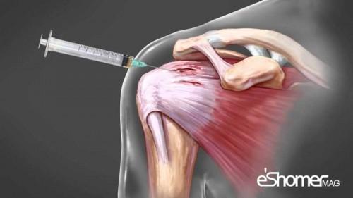 زانو درد و درمان آن به روش